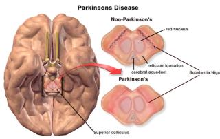 The parkinson prisoner